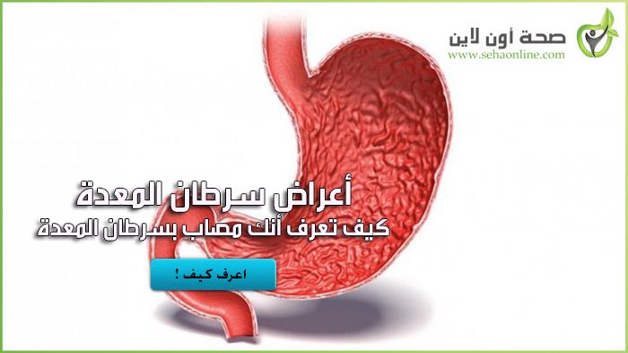 تعرف على أعراض سرطان المعدة