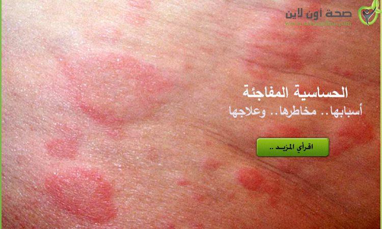 الحساسية المفاجئة أسباب حساسية الجلد المفاجئة وعلاجها