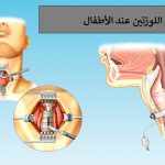 التهاب اللوزتين عند الأطفال