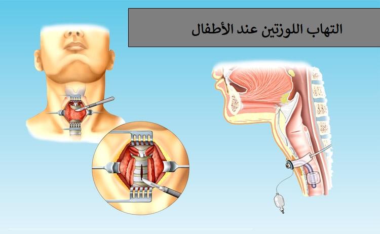 التهاب اللوزتين عند الأطفال أسباب وعلاج التهاب اللوزتين عند الأطفال