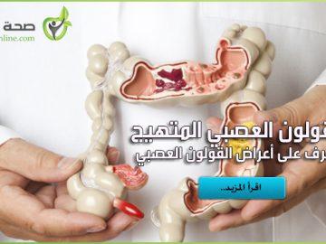 أعراض القولون العصبي المتهيج