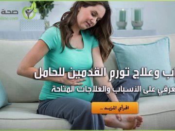تورم القدمين للحامل
