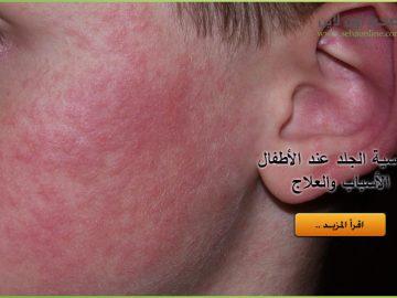 حساسية الجلد عند الأطفال
