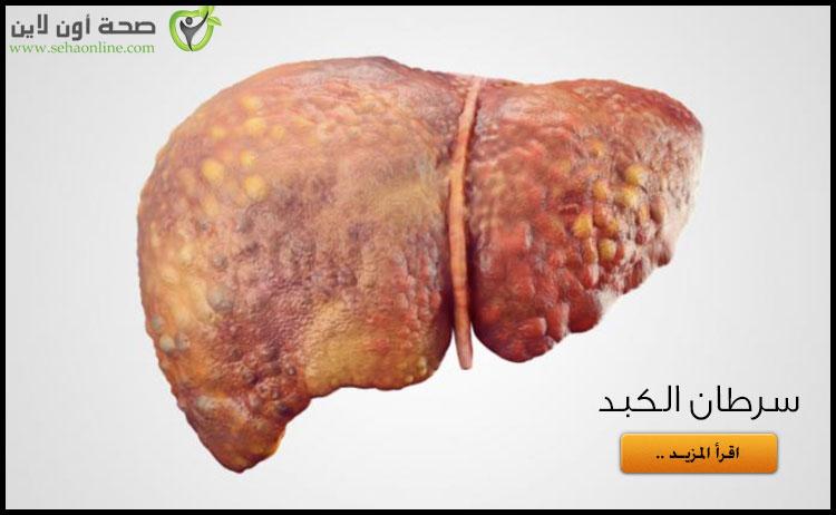 سرطان الكبد .. أسباب الإصابة بسرطان الكبد وأعراضه وعلاجه