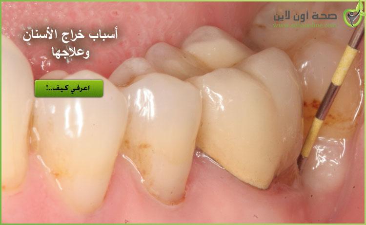علاج خراج الاسنان تعرف على أسباب الخراج بالاسنان وعلاجه
