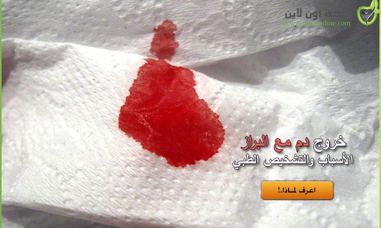 دم مع البراز .. ما هي أسباب خروج الدم مع البراز طبيًا