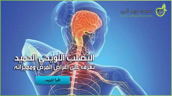 اعراض التصلب اللويحي الحميد