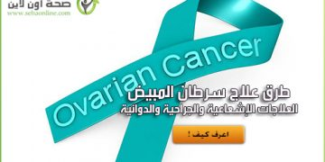 علاج سرطان المبيض