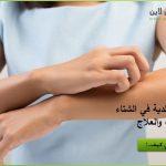 حساسية الجلد في الشتاء