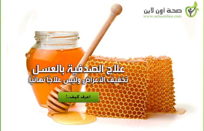 علاج الصدفية بالعسل … طريقة علاج الصدفية بالعسل