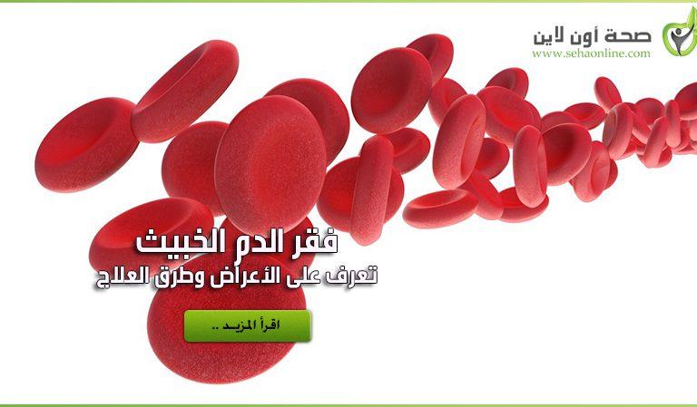 فقر الدم الخبيث – الأعراض والأسباب والعلاج