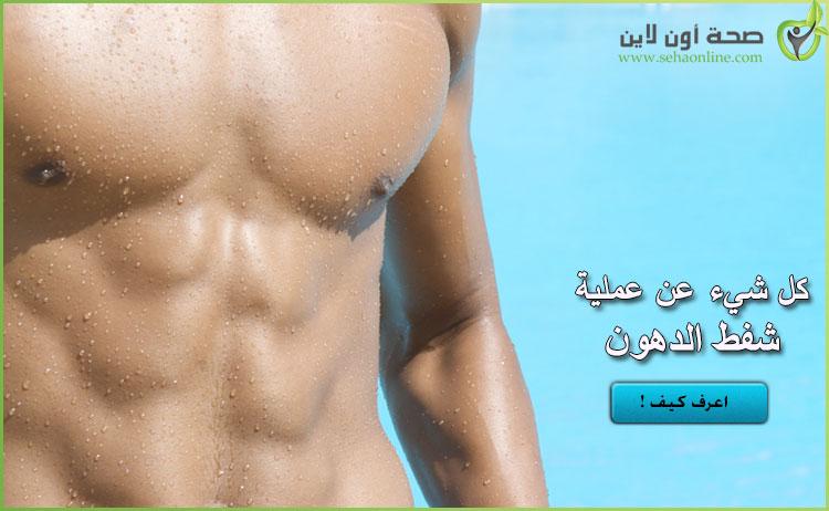عملية شفط الدهون .. اعرف كل شيء عن عملية شفط الدهون
