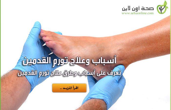 أسباب وعلاج تورم القدمين والكاحلين