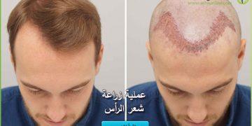 عملية زراعة شعر