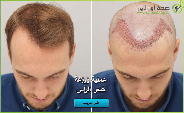 عملية زراعة الشعر كل شيء عن عملية زراعة شعر الرأس