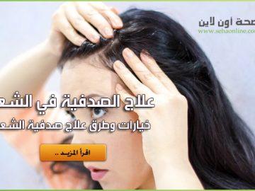 علاج الصدفية في الشعر