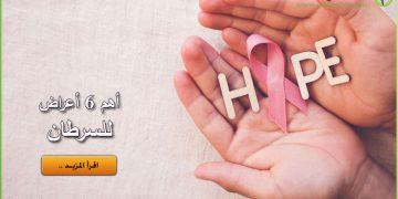 ظهور السرطان