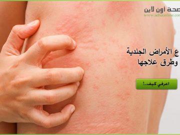الامراض الجلدية