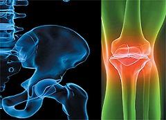 غالبية سكان العالم مصابون بمرض هشاشة العظام