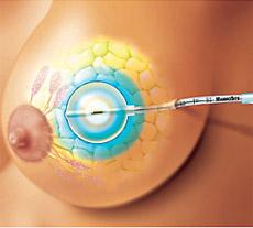 العلماء يؤكدون تحسن فرص علاج سرطان الثدي