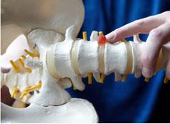 التخصصي يجري عمليات جراحية حديثة لعلاج آلام أسفل العمود الفقري