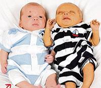 حالة نادرة جداً ولادة توأمين بفارق يومين في بريطانيا