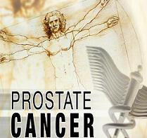 تطوير اختبار لتشخيص سرطان البروستاتا بشكل دقيق