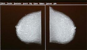 كشف فحص سرطان الثدي يجب أن يبدأ منذ العقد الرابع وليس الخامس