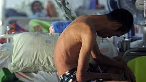 96 حالة وفاة يومياً بسبب مرض الإيدز في الدول العربية
