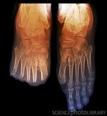 تناقص حالات بتر الأقدام بين مرضى السكري بنسبة 65 بالمئة
