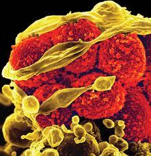 بكتريا فتاكة آكلة للحوم البشر تنتشر في بريطانيا وأمريكا