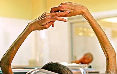 حقن الحمل الهرمونية قد تسبب الإصابة بالإيدز