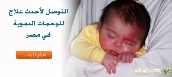 التوصل لأحدث علاج للوحمات الدموية في مصر
