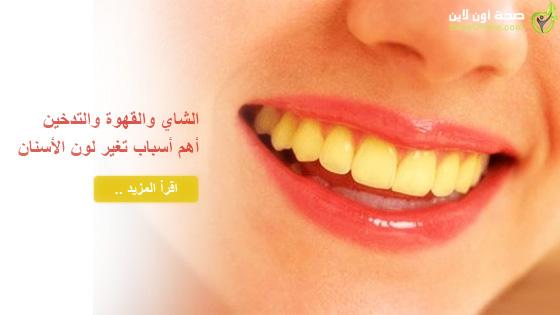 الشاي والقهوة والتدخين أهم أسباب تغير لون الأسنان