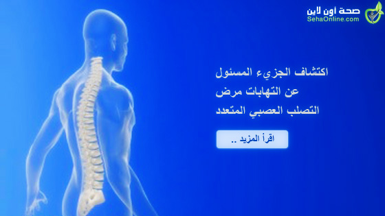 اكتشاف الجزيء المسئول عن التهابات مرض التصلب العصبي المتعدد
