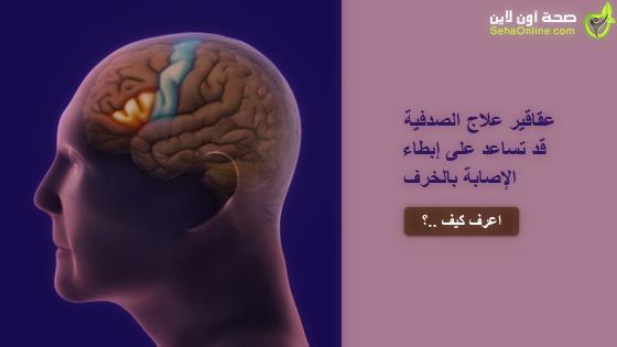 عقاقير علاج الصدفية قد تساعد على إبطاء الإصابة بالخرف