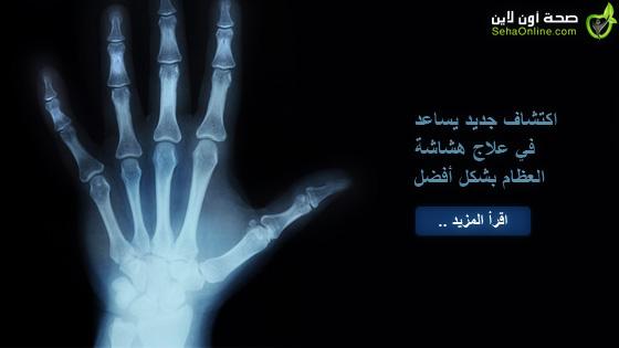 اكتشاف جديد يساعد في علاج هشاشة العظام بشكل أفضل