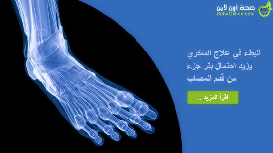 تجنب 80 بالمئة من حالات بتر أقدام السكري بالعلاج السريع