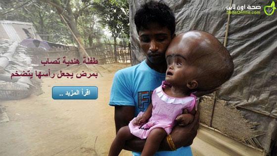 طفلة هندية تصاب بمرض يجعل رأسها يتضخم