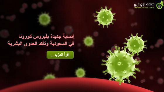 إصابة جديدة بفيروس كورونا في السعودية وتأكد العدوى البشرية