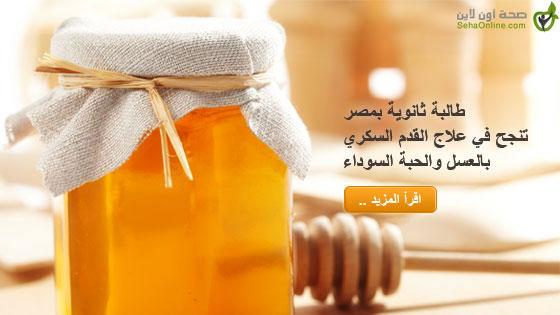 طالبة ثانوية بمصر تنجح في علاج القدم السكري بالعسل والحبة السوداء
