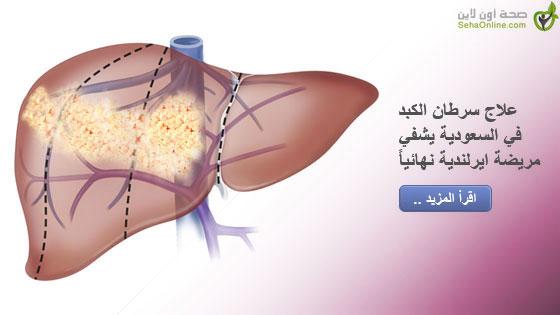 علاج سرطان الكبد في السعودية يشفي مريضة ايرلندية نهائياً
