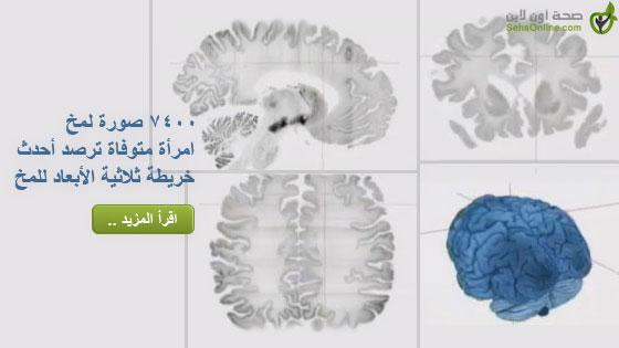7400 صورة لمخ امرأة متوفاة ترصد أحدث خريطة ثلاثية الأبعاد للمخ