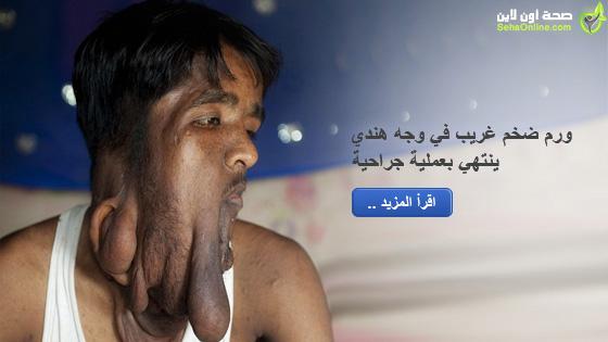 ورم ضخم غريب في وجه هندي ينتهي بعملية جراحية