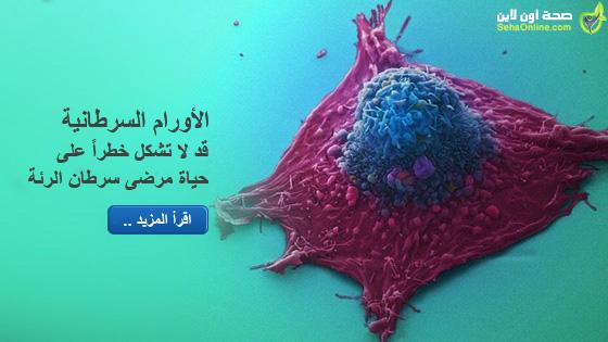 الأورام السرطانية قد لا تشكل خطراً على حياة مرضى سرطان الرئة