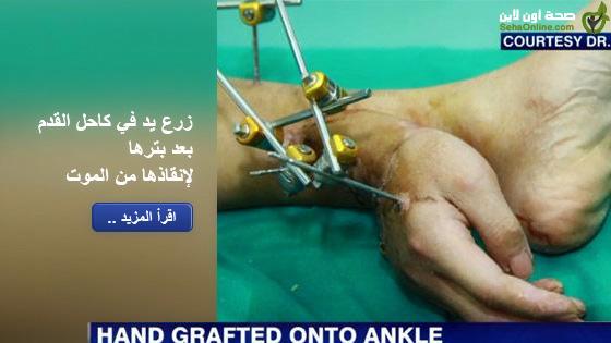 زرع يد في كاحل القدم بعد بترها لإنقاذها من الموت