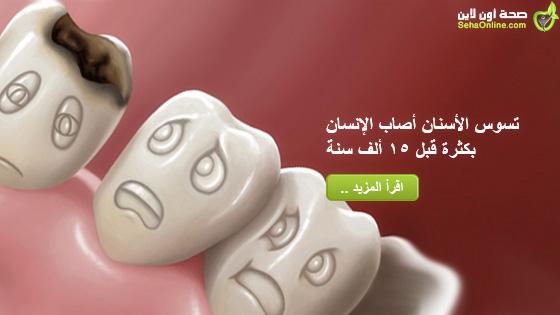 تسوس الأسنان أصاب الإنسان بكثرة قبل 15 ألف سنة