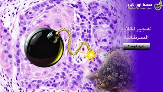 برمجة فيروس الحصبة لتفجير الخلايا السرطانية