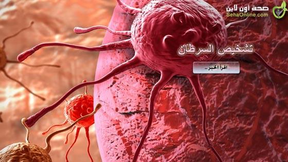 تشخيص مبكر للسرطان قبل حدوثه بسنين