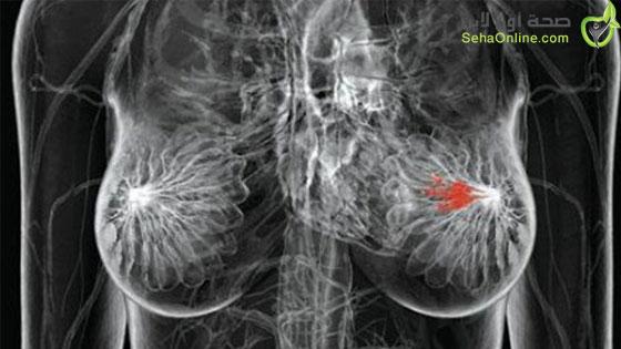 المشروبات والأكل الغني بالسكر يحفز سرطان الثدي